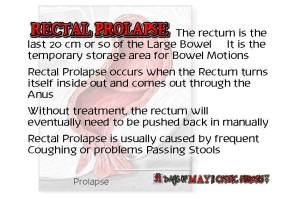 day26 rectal prolaps