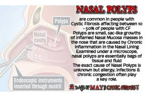 day30 polyps